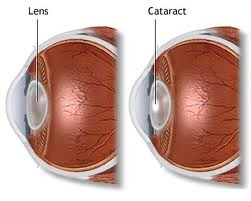 Cataract in the eye - diagram