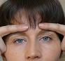 Eyelid Lifting Exercises - Firming upper eyelids